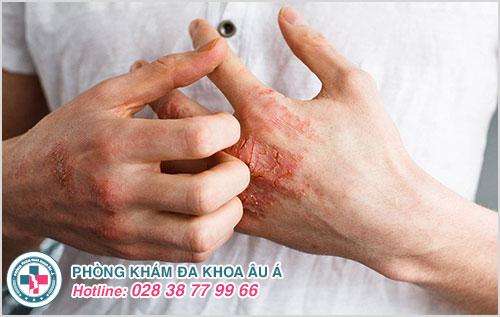 Giang mai ở nam giới, tỷ lệ lây nhiễm có xu hướng ngày càng tăng