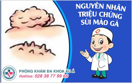 Nguyên nhân triệu chứng sùi mào gà và cách chữa