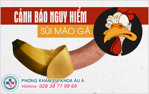 Cảnh báo nguy hiểm từ bệnh sùi mào gà ở nam giới